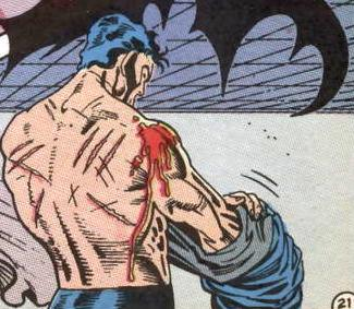 Batman removing his suit displays wounds on his shoulders